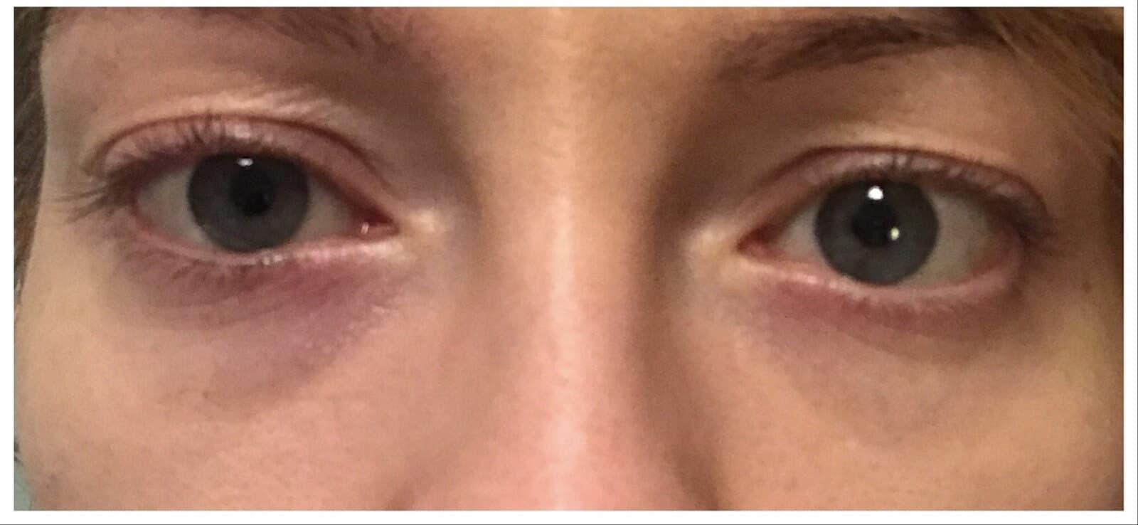 Efekt po 3 zabiegach laserem FOTONA