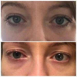 Efekt przed ipo3 zabiegach laserem FOTONA