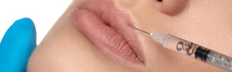 Powiększanie ust kwasem hialuronowym