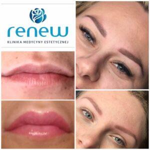 RENEW CLINIC - Makijaż permanentny