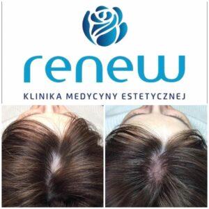 Klinika RENEW