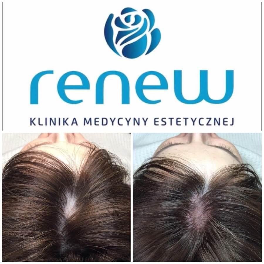RENEW CLINIC - pigmentacja medyczna