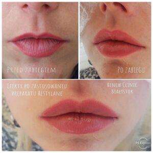 RENEW CLINIC - Powiększenie ust